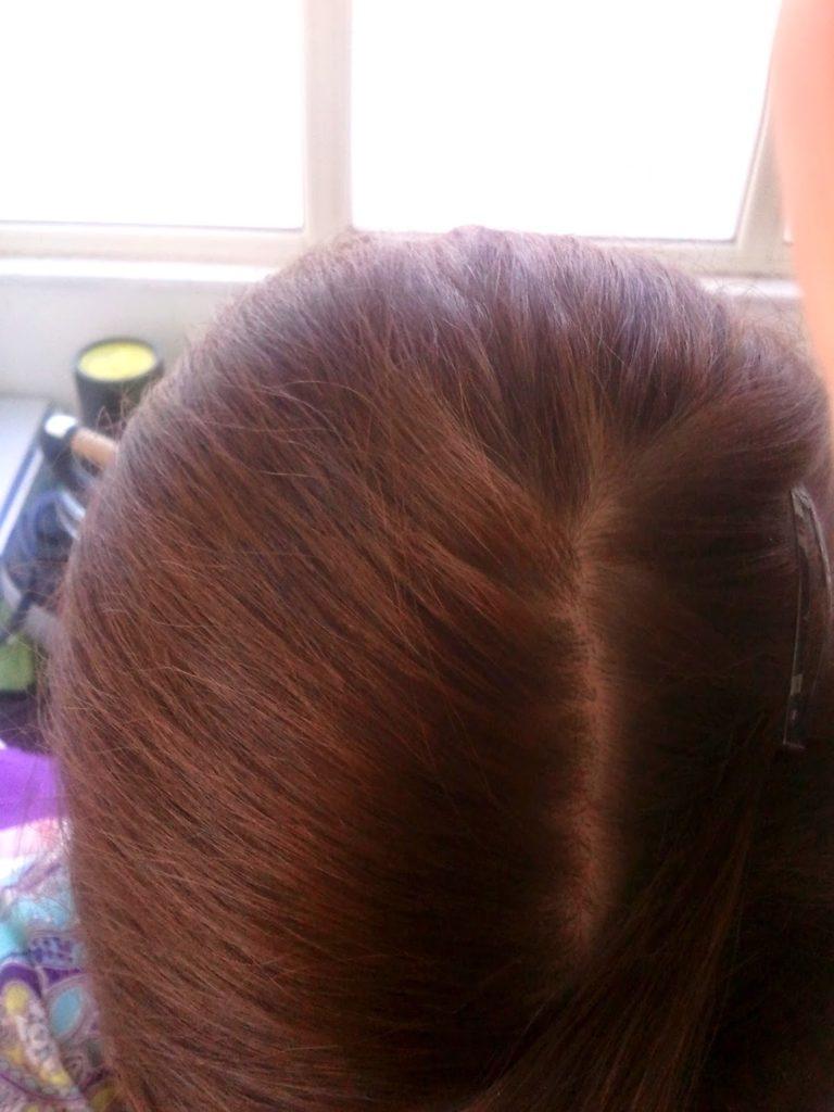 XTRO HAIRCARE prevenzione contro la caduta dei capelli  XTRO HAIRCARE prevenzione contro la caduta dei capelli  XTRO HAIRCARE prevenzione contro la caduta dei capelli  XTRO HAIRCARE prevenzione contro la caduta dei capelli  XTRO HAIRCARE prevenzione contro la caduta dei capelli  XTRO HAIRCARE prevenzione contro la caduta dei capelli